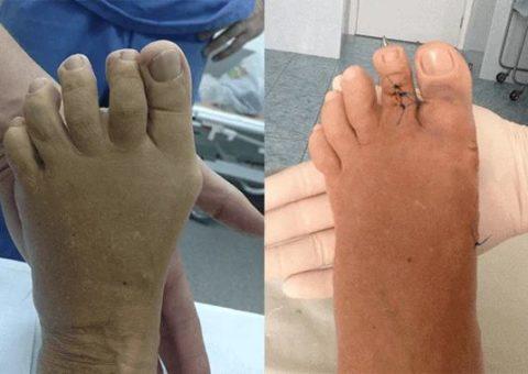 Пациенты до/после